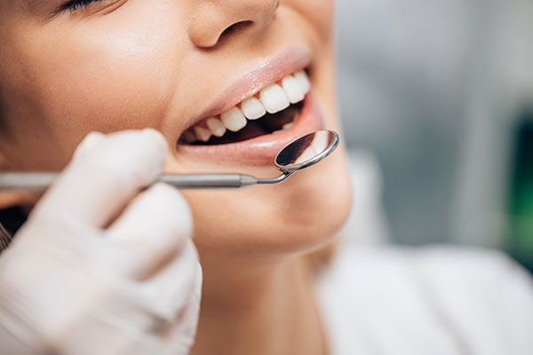 teeth-whitening-services